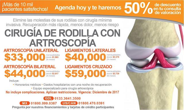 Precio de tratamientos y cirugias para dolor de rodilla Guadalajara