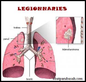 Penyakit Paru Paru Legionnaries