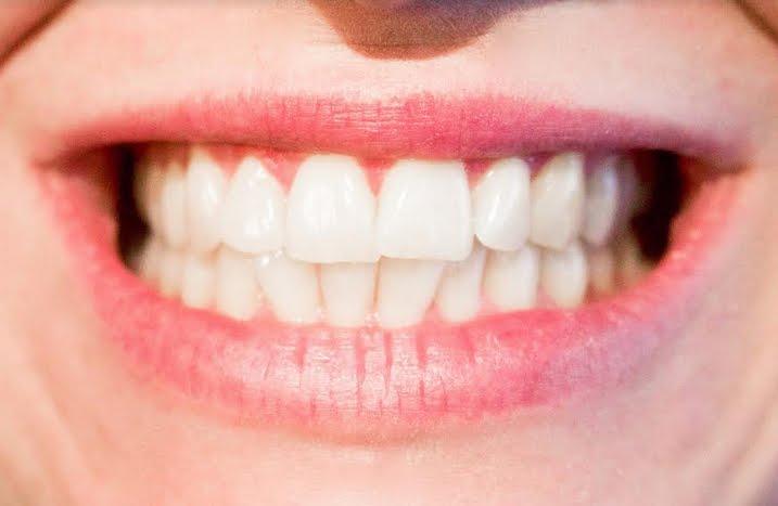 Prima il filo interdentale, poi lo spazzolino: ecco il modo corretto di lavarsi i denti.