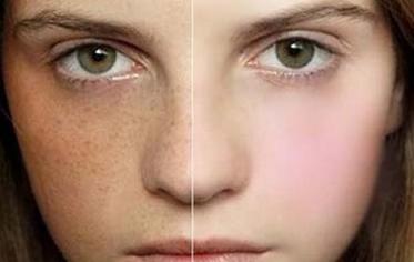 Cách trị nám da mặt bằng mật ong