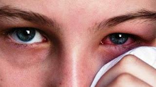 10 Cara Ampuh Mengobati Infeksi Mata Secara Alami