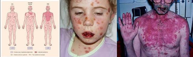 Pengobatan Sindrom Stevens Johnson , Obat Penyakit Kulit Alergi Parah