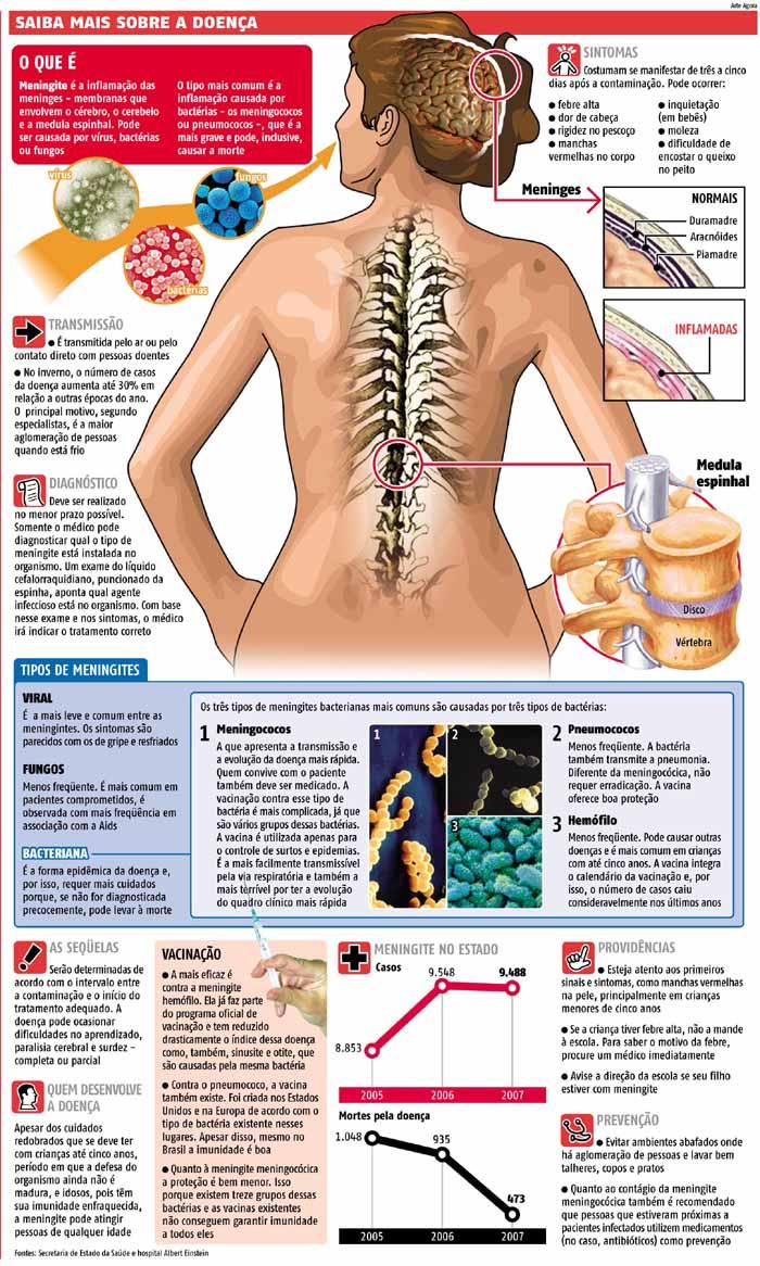 #Meningite - Sintomas, Prevenção e Tratamento