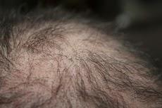 5 Perawatan Rumahan Terbaik Untuk Rambut Rontok