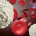 白血病(急性血癌)