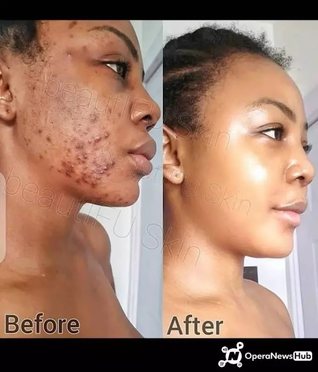 Natural Skin Solutions To Treat Pimples Quickly And Effectively.