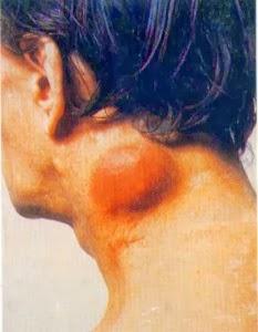 Obat Kelenjar Getah Bening Di Leher