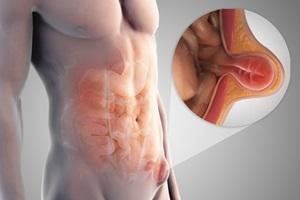 2 Tanaman Herbal Obat Penyakit Hernia