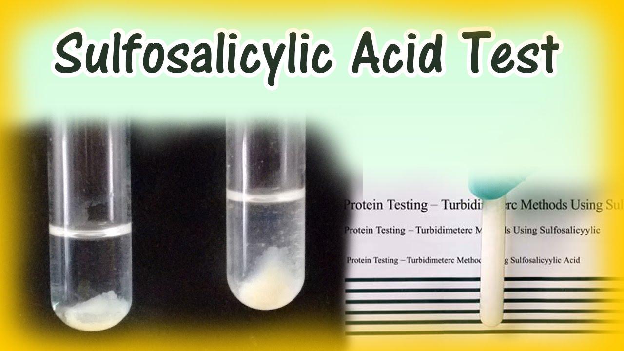 urine albumin test procedure pdf