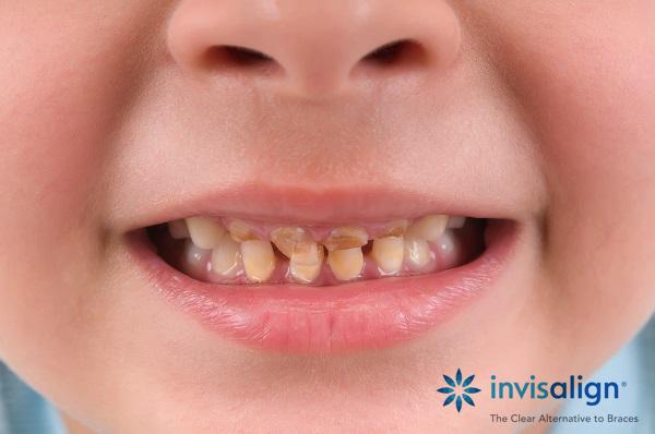 Tại sao trẻ em hay bị sâu răng