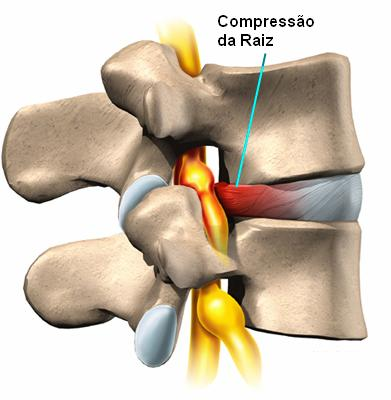 fotos de hernia de disco na coluna cervical