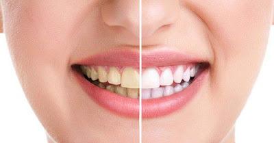 Kinh nghiệm bọc răng sứ bạn nên biết