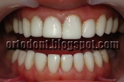 Верхние и нижние зубы облицованы композитом светового отверждения
