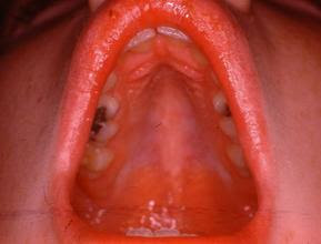 High Arched Palate Symptoms, Causes, Treatment, Diagnosis, Treatment