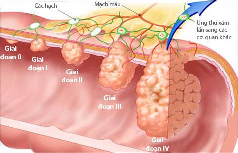 Các giai đoạn của ung thư đại trực tràng