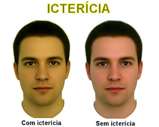 Icterícia