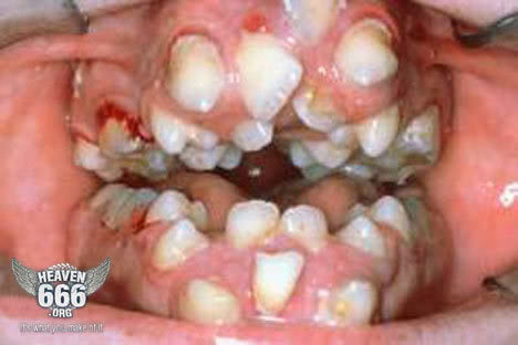 Dental Work In Mexico Page 2 Niketalk