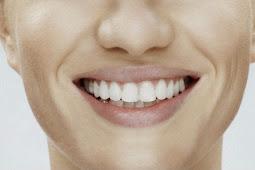 Ucapkan Selama Tinggal pada Bau Mulut dan Plak