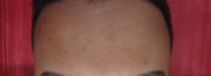 resenha clear pele abelha rainha