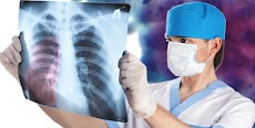 Mesothelioma Lawsuit in United Stated of America USA