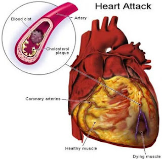 Causes Of Heart Fail