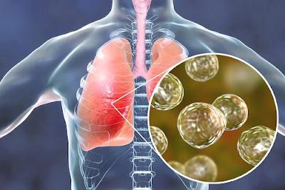 remèdes naturels contre les symptômes de la blastomycose