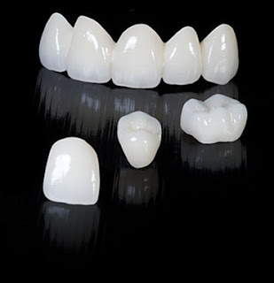 http://crystaldentalcentre.com/crowns