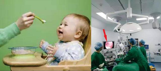 """Bayi 3 Tahun Perutnya Dipenuhi Nanah, Ternyata Penyebabnya Karena """"Kebiasaan"""" Si Ibu Ketika Menyuapi Makanan, Hindari dan Jangan Contoh!"""