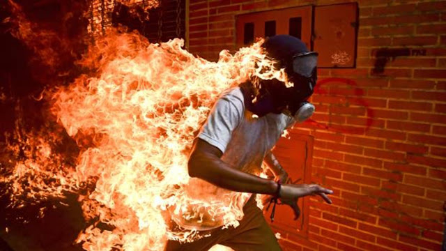 El fotoperiodista venezolano Ronaldo Schemidt gana el World Press Photo
