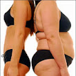 Best Buttlock Augmentation Treatment In Chennai