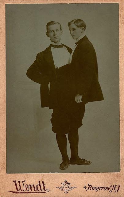 gambar manusia aneh bertubuh 2 dengan 2 kepala dan dua kaki