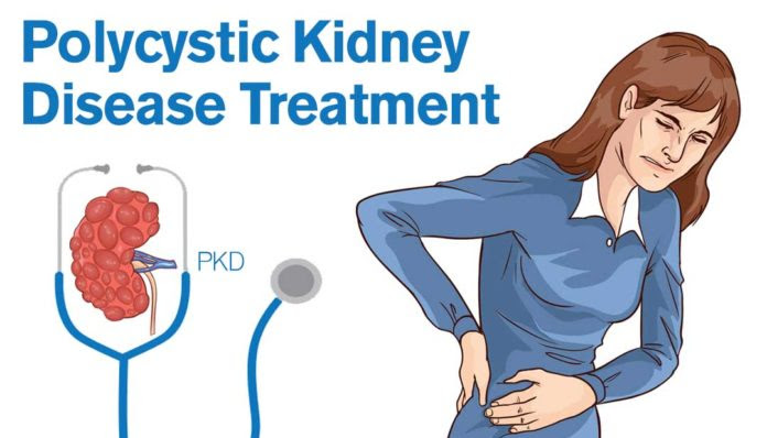 Patient's Guide on Polycystic Kidney Disease Treatment