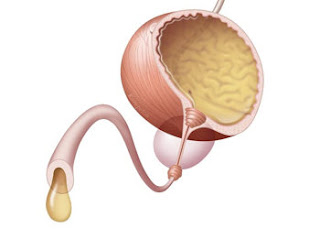 Diagnosis and Treatment For Urinary Tract Infection