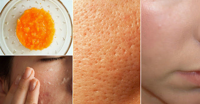 How To Remove Large Pores Within 24 Hours!