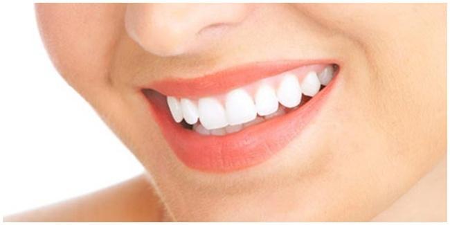 Tips Agar Susunan Gigi Indah Alami