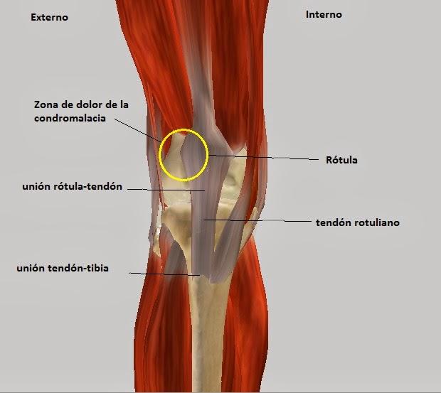 Biomec nica del ciclismo tendinitis y condromalacia - Dolor en la parte interior de la rodilla ...