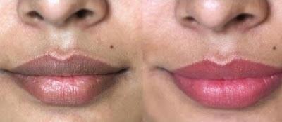 Astuces pour des lèvres douces et volumineuses