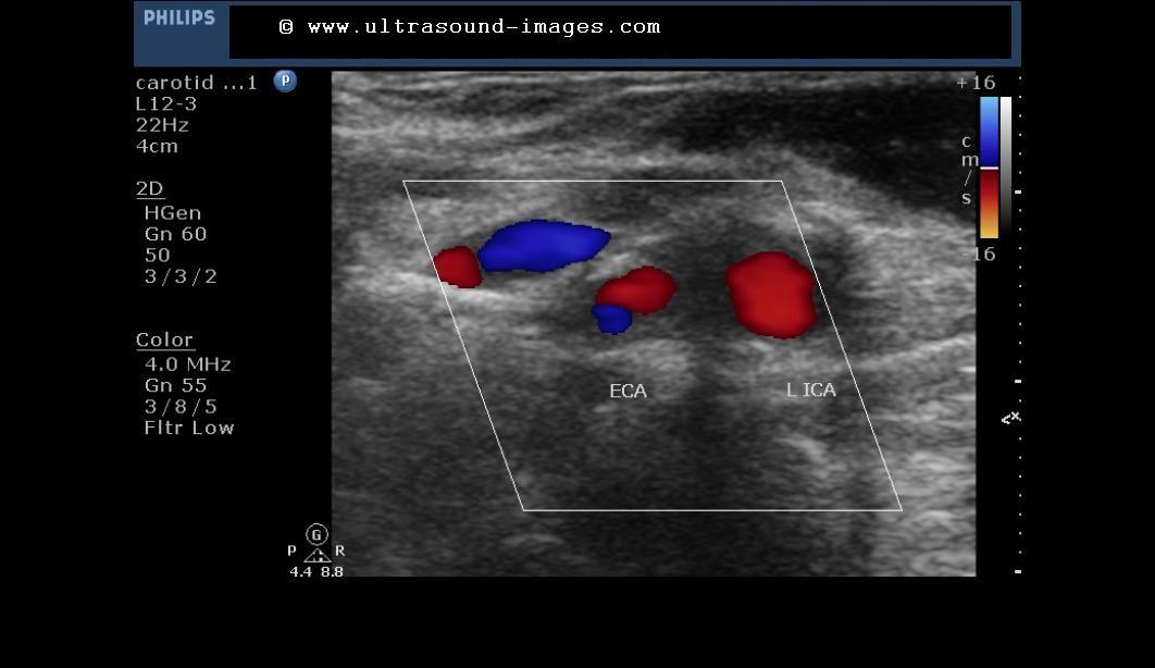 carotid ultrasound circumstance studies