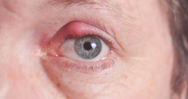 Cách trị mụn lẹo ở mắt đơn giản