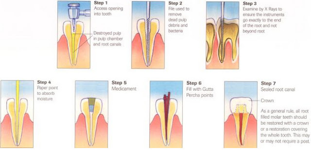 Common Dental Procedures