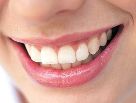Kết quả hình ảnh cho Với răng bị nhiễm flour chỉ có cách bọc răng sứ mà thôi!