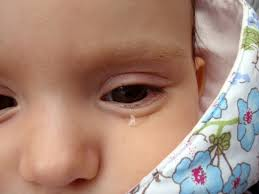 Punca Dan Tanda Tanda Dejidrasi Pada Bayi