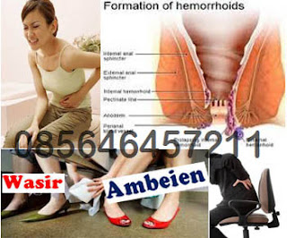 Wasir (Hemoroid) - Gejala, Penyebab dan AMBEJOSS ZAITOP