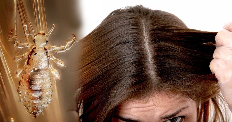 Cara Alami dan Cepat Menghilangkan Kutu Rambut