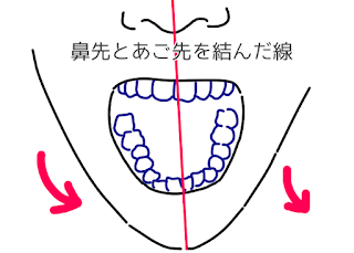 ©さんがつの歯科矯正を始めます 歯並びのイラスト