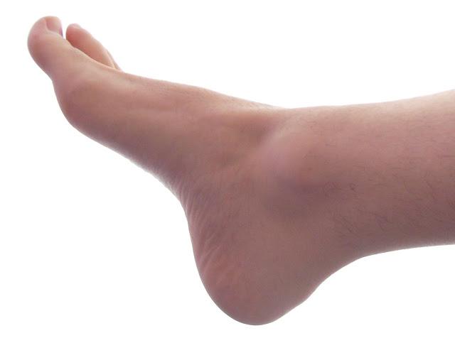 وصفة طبيعية تخلصك من تعب القدمين