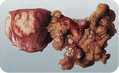 Tumor penyakit mematikan sel hidup dalam tubuh
