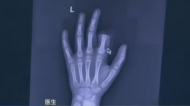 chinese finger cut