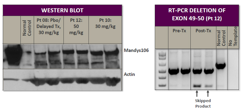 RNAi Therapeutics: Sarepta Discloses Dystrophin Expression