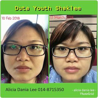 Nona majalah; skin care viral; skin care organik di malaysia; skin care Youth; Youth Shaklee; shaklee labuan; shaklee skin care; youth skin care testimoni; shaklee labuan; shaklee kudat; shaklee tawau; shaklee sabah; shaklee beaufort